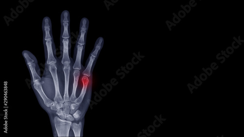 Fotografia Film X-ray hand radiograph show finger bone broken (fifth metacarpal fracture or Boxer's fracture) from sport injury