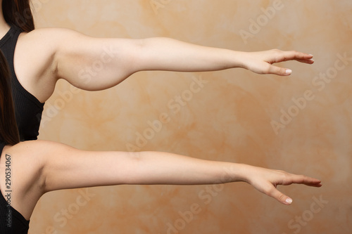 Obraz na plátně  A before and after brachioplasty view on the arm of a Caucasian woman