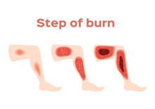 Step Of Burn . Normal To Serious Burn Skin . Vector And Icon / Leg