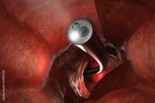 Colonoscopy technology concept Canvas Print