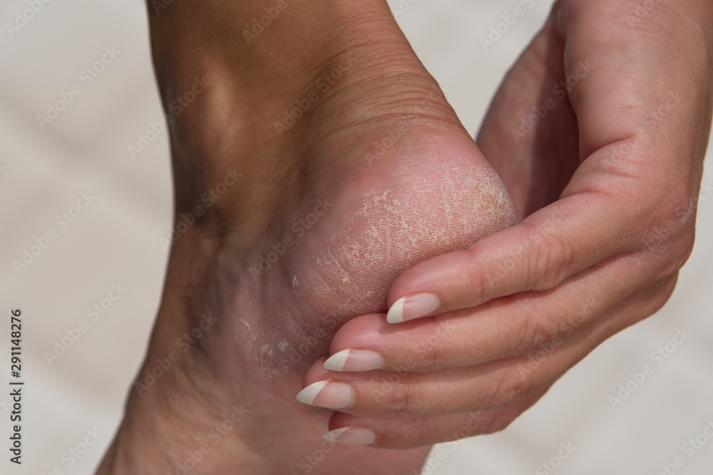 Fototapeta Woman treat cracked hard skin on the heel in the bathroom.