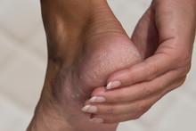 Woman Treat Cracked Hard Skin ...