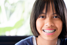 Girl With Braces Teeth Smiling...
