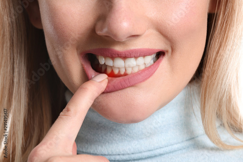 Woman with gum inflammation, closeup - 291495617