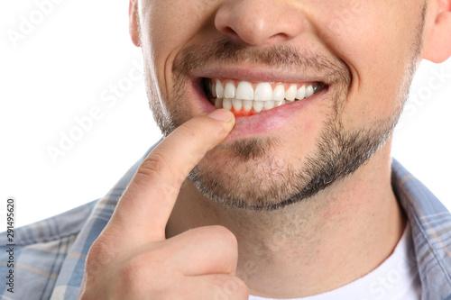 Canvastavla Man with gum inflammation on white background, closeup