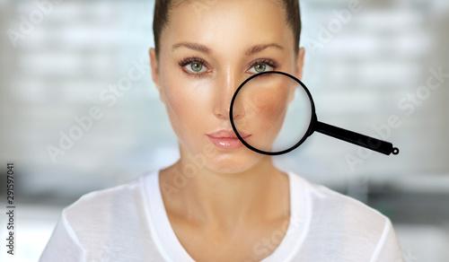 Dark spots, freckles,hyperpigmentation(melasma or chloasma) Canvas Print