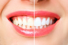 Woman Teeth Before And After W...