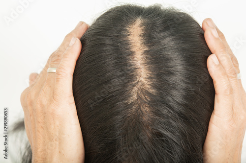 .Scalp and thin hair, hair removal Thin hair and scalp and broken hair Canvas Print