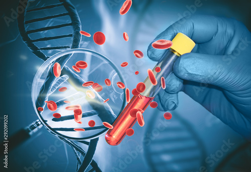 Fototapeta Test finds the first signs of a tumor in the blood, Based on DNA analysis for th