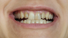 Smile With Ugly Crooked Yellow Teeth With Fillings.