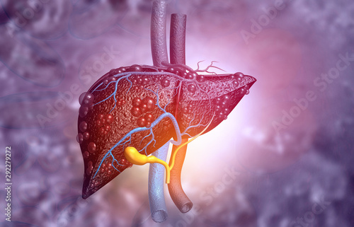 Pinturas sobre lienzo  3d illustration of Abstract medical background with Diseased liver