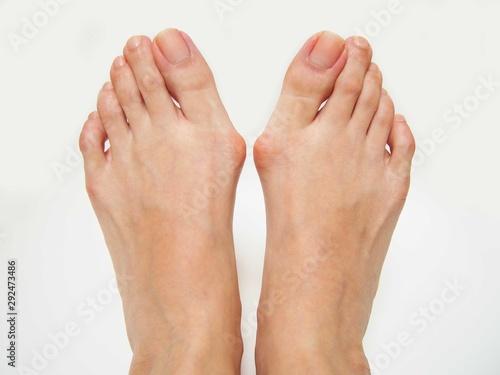 外反母趾で内反小趾の足 Obraz na płótnie