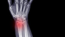 Film X-ray Wrist Radiograph Show Lower End Of Forearm Bone Broken (distal End Radius Fracture) From Falling. Highlight On Broken Site And Painful Area.  Medical Imaging And Technology Concept