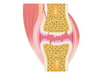 Damaged Joint / Crack Bone And Osteoarthritis Vector