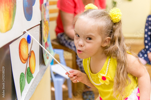 Girl with Down Syndrome develops thinking in a rehabilitation center for special Canvas Print