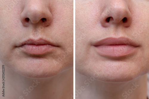 Photo Female lips before and after augmentation, the result of using hyaluronic filler
