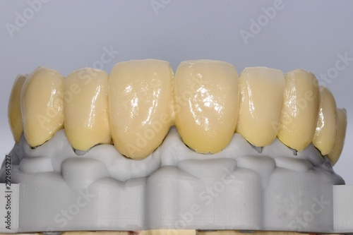 Fotografia, Obraz Dental prosthesis structure, 3D printed with laser sintering, fourth ceramic lay
