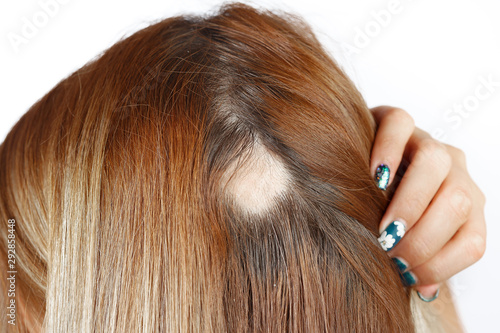 Photo 30 year old Caucasian woman with spot alopecia, bald spot on her head