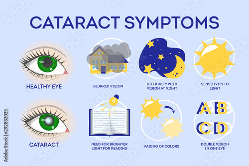 Cataract disease symptoms inographic. Eye illness, blindness Canvas Print