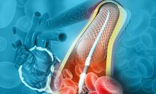 Human Heart Angioplasty. 3d Il...
