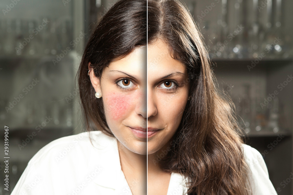Fototapeta A before and after portrait of a professional woman who suffered from rosacea, resulting in rosy red cheeks, laser surgery gives a flawless complexion with confident smile.