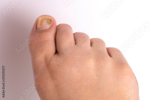 A closeup and top view on the bare foot of a caucasian person suffering from tinea unguium, a fungal infection causing yellow discoloration of the big toenail Canvas Print