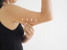 Cellulite In Asian Woman And She Grabbing Her Upper Arm With Drawing Line And Arrow Cause Of Fatty From Weight And Loss Of Collagen Use For Body Firming Gel Or Cream Product.