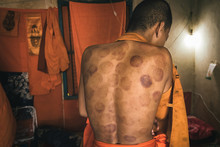 Buddhist Monk With A Cupping T...