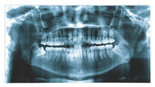 X-ray Of A Human Jaw , Panoramic Dental X-Ray From A Mouth With Some Tooth Wisdom Tooth Crashed Into A Molar.