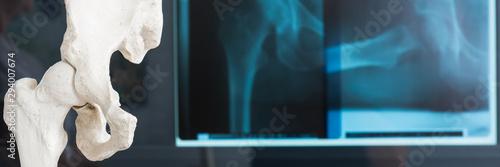 Fotomural röntgenbild vom beckenknochen