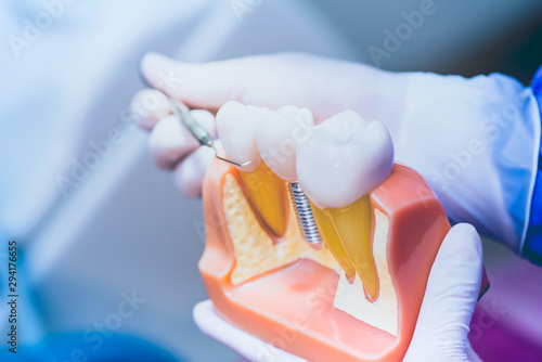 Dentist with tooth implant false teeth. Dentistry and healthcare concept at dental clinic.
