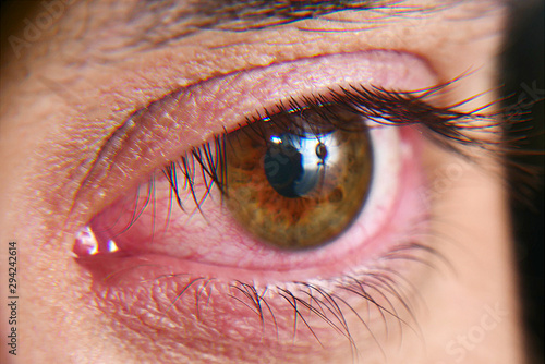 Fotografie, Obraz Red squirrel eyes, macro photo. Conjunctivitis, eye disease.