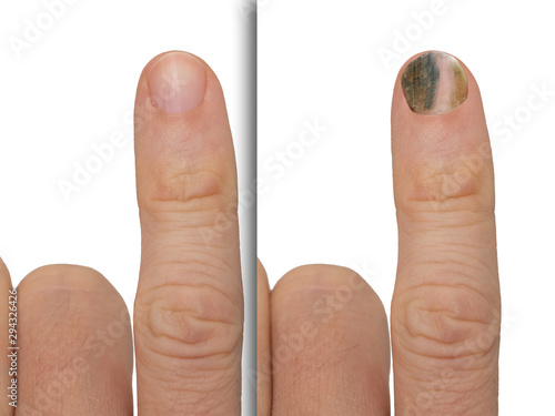 Before and after successful treatment for a fungal infection on fingernail Wallpaper Mural