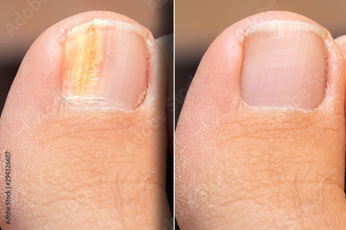 Stampa su Tela Before and after successful treatment for a fungal infection on toenail