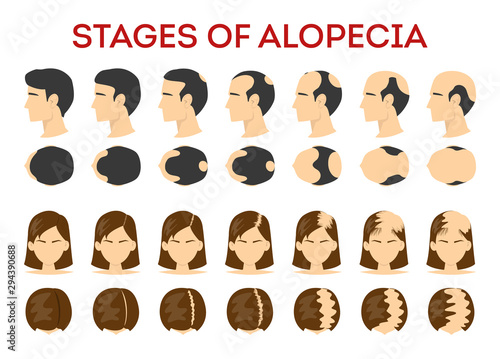 Vászonkép  Alopecia stages set. Hair loss, balding process. Female