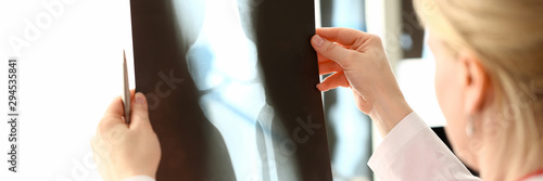 Photo Female radiolog holding in hands x-ray films images aganist hospital office background