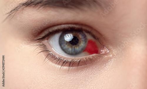 Fototapeta  Bloodshot eye