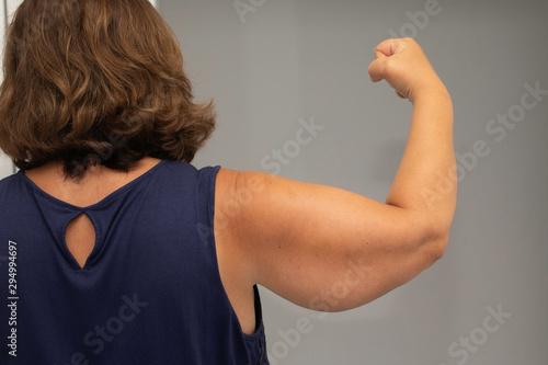 Fototapeta  Sagging skin on mature woman arm