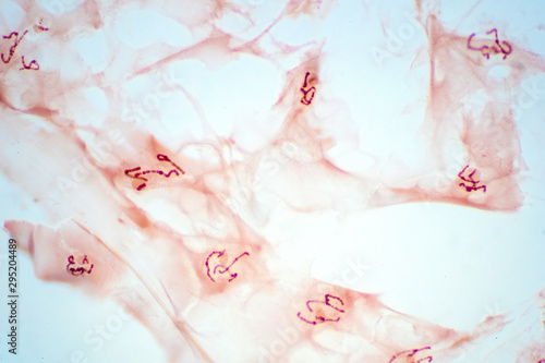 Fototapety, obrazy: Salivary gland cells of the chromosomes under microscope view for education pathology.