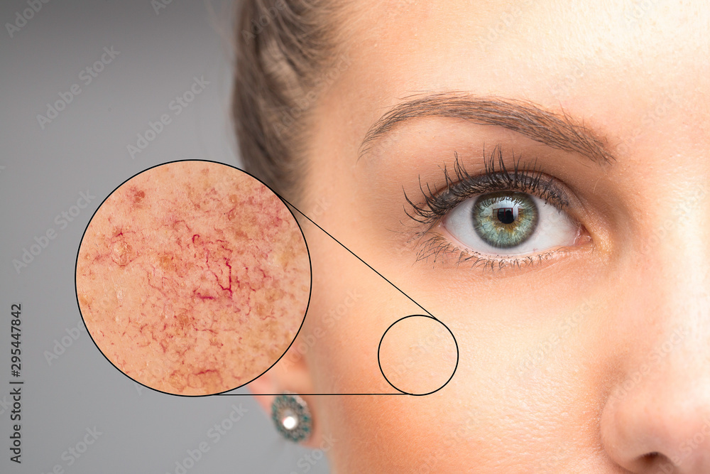 Fototapety, obrazy: Woman face skin imperfection, capillaries in zoom circle