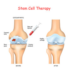 Stem Cell Therapy For Pain In ...