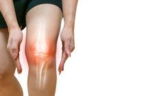 Human Leg Osteoarthritis Infla...