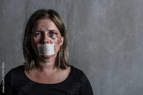 Photo Beaten up woman victim of domestic violence and abusewith covered her mouth
