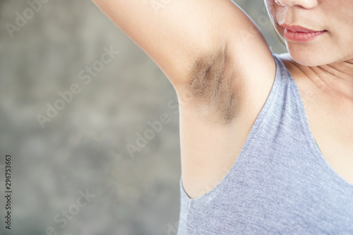 Asian woman having skin problem with black armpits