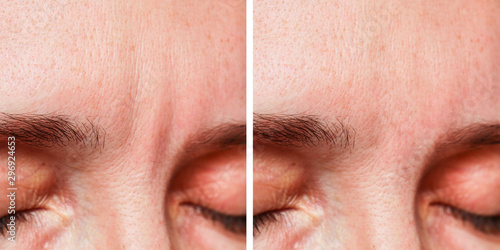 Canvastavla Woman Before, After a cosmetic procedure, eyebrow wrinkles