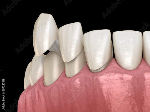 Veneer installation procedure over central incisor and lateral incisors. Medically accurate tooth 3D illustration
