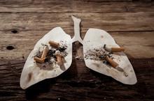 Smoking Kills And Lung Cancer....