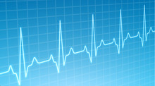 ECG Heartbeat Monitor, Cardiogram Heart Pulse Line Wave. Electrocardiogram Medical Background