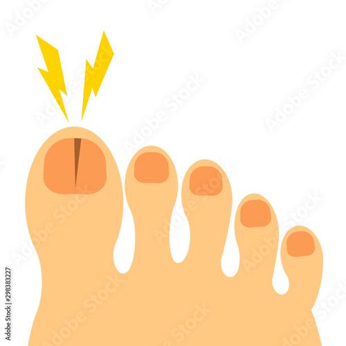 Valokuva  割れた足の爪