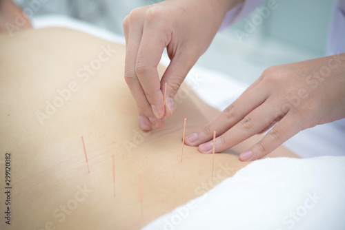 Closeup, patient getting acupuncture from acupuncturist at clinic for chinese medicine treatment Canvas Print